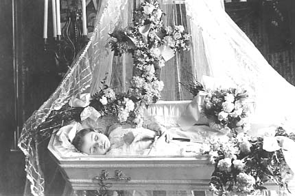 Child Open Casket Funeral